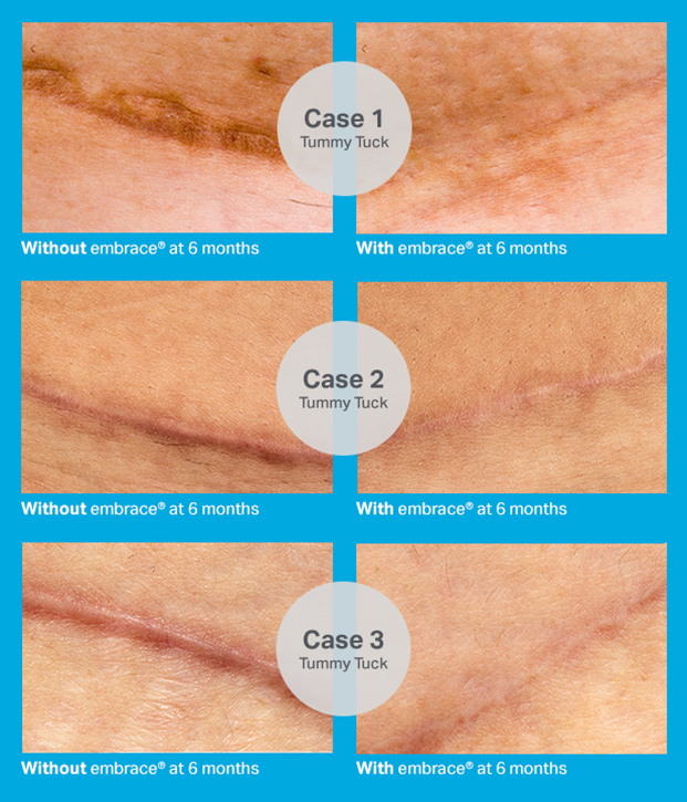 Why We Choose Embrace® Scar Therapy | Park Meadows Surgery